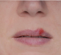 Herpes treatments