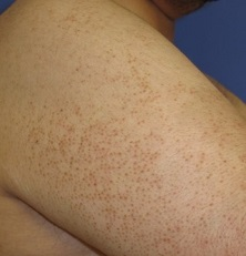Keratosis Pilaris causes